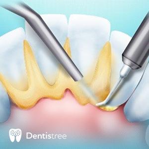 Ультразвуковая чистка зубных камней