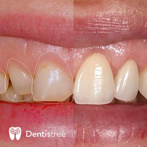 Реставрация зубов в Сумах