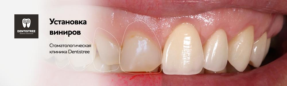 Художественная реставрация скола зубов Сумы