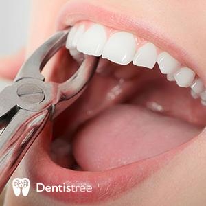 Удаление зубов в Сумах