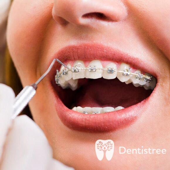 Взрослая ортодонтия