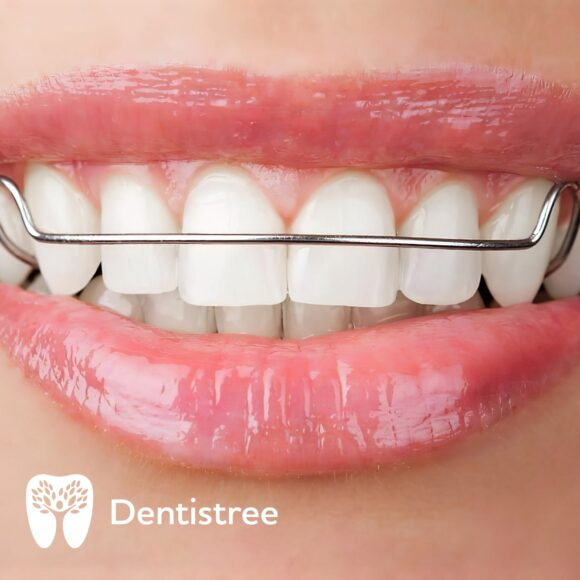 Пластинки на зуби