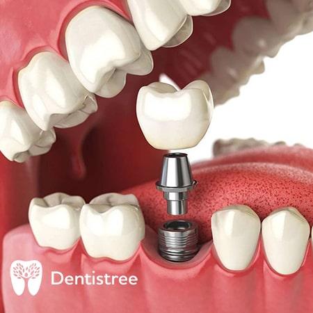 Сучасне протезування зубів
