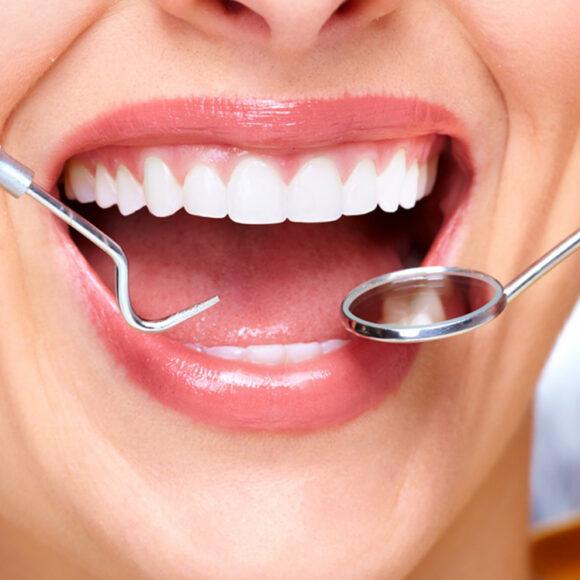 Нарощування зубів