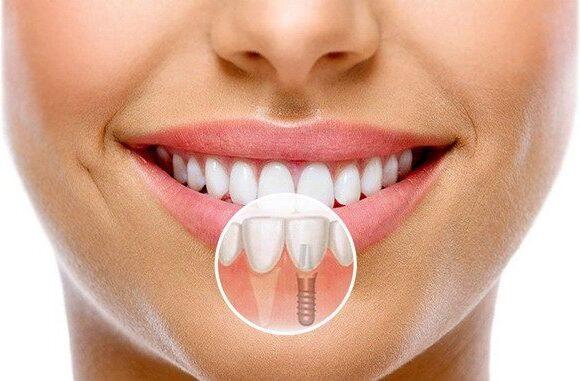 Імплантація зубів (імпланти)